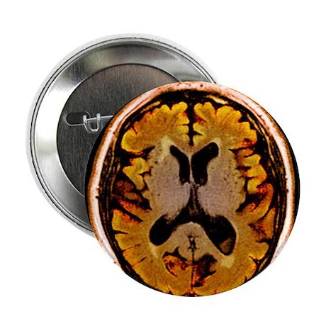 Alcoholic dementia, MRI scan - 2.25' Button (10 pa