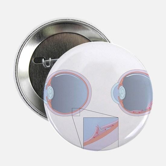 Detached retina, artwork - 2.25' Button (10 pack)