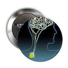 Parkinson's disease treatment, artwork - 2.25' But
