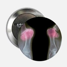 X-ray of bunions on the toes - 2.25' Button (10 pa