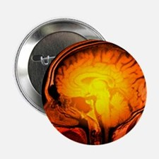 Brain anatomy, MRI scan - 2.25' Button (10 pack)