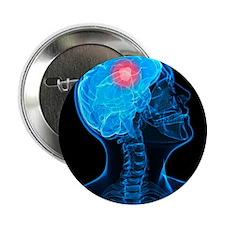 Brain cancer, artwork - 2.25' Button (10 pack)