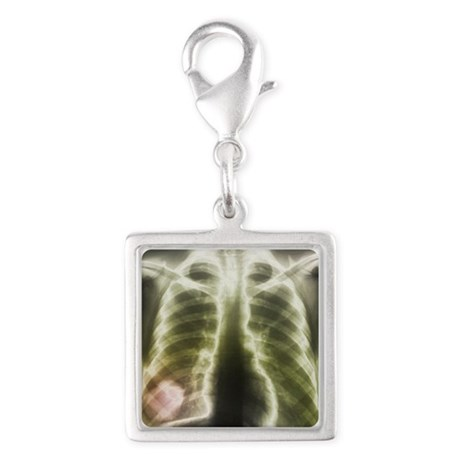 Pulmonary tapeworm cysts, X-ray - Silver Square Ch