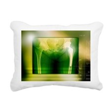 Hip replacement, X-ray - Rectangular Canvas Pillow