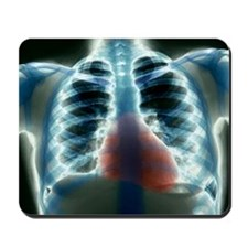 Healthy heart and lungs, X-ray - Mousepad