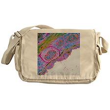Heart blood vessel wall, TEM - Messenger Bag