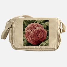 Kidney glomerulus, SEM - Messenger Bag