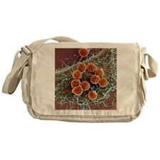 T lymphocytes and cancer cell, SEM - Messenger Bag