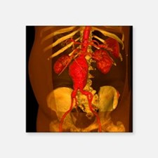 Aortic aneurysm, 3-D CT scan - Square Sticker 3