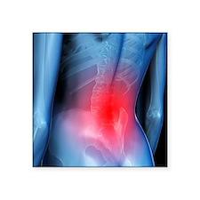 Lower back pain, conceptual artwork - Square Stick