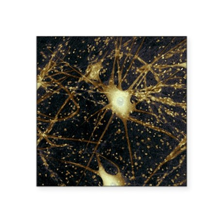 Motor neurons, light micrograph - Square Sticker 3