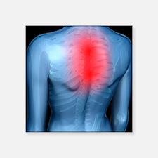 Upper back pain, conceptual artwork - Square Stick