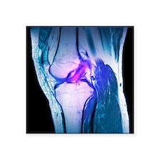 Anterior cruciate ligament tear, CT scan - Square