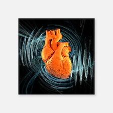 Heartbeat, conceptual artwork - Square Sticker 3