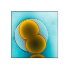 Meningitis C bacteria, TEM - Square Sticker 3