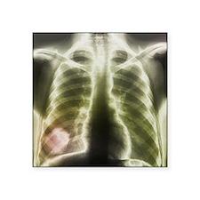 Pulmonary tapeworm cysts, X-ray - Square Sticker 3