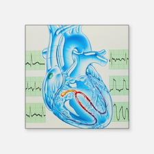 Artwork of cardiac arrhythmia with heart - Square
