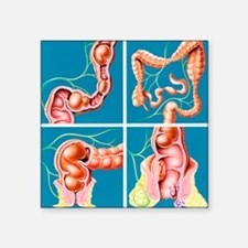 Causes of constipation - Square Sticker 3