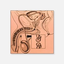 Artwork showing a vasectomy operation - Square Sti