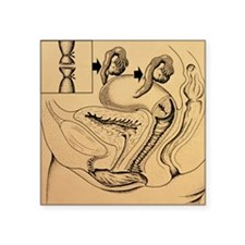Artwork showing method of female sterilization - S