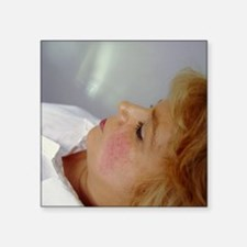 Cosmetic laser surgery - Square Sticker 3