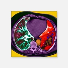 Lung cancer, CT scan - Square Sticker 3