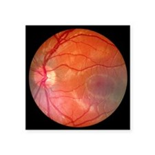 Fundus camera image of a normal retina, Caucasian