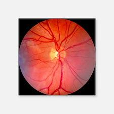 Normal retina of eye - Square Sticker 3