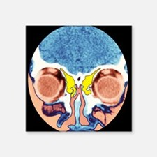 Nose and sinuses, CT scan - Square Sticker 3