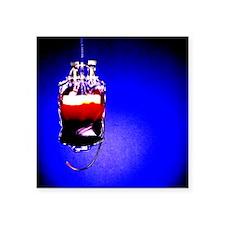 Suspended blood bag - Square Sticker 3