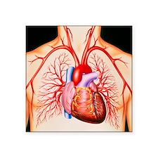 Human heart, artwork - Square Sticker 3