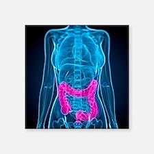 Healthy large intestines, artwork - Square Sticker