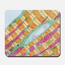 Mousepad - Cardiac muscle, TEM
