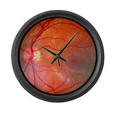 retina, Caucasian - Large Wall Clock