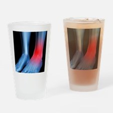 Ankle pain, conceptual artwork - Drinking Glass