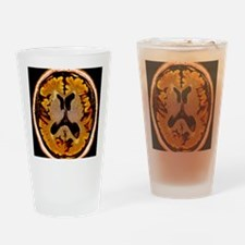 Alcoholic dementia, MRI scan - Drinking Glass