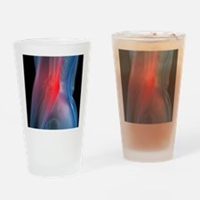 Elbow pain, conceptual artwork - Drinking Glass
