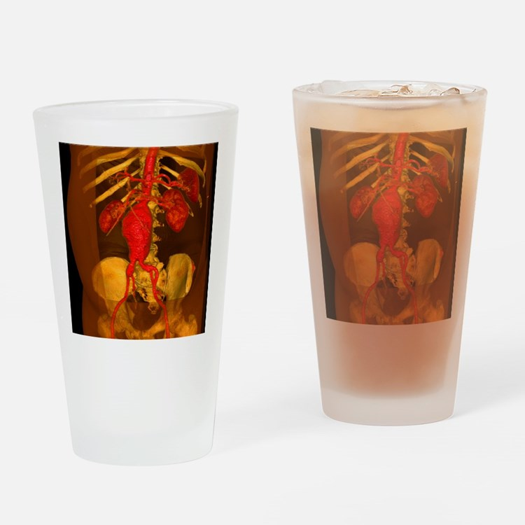 Aortic aneurysm, 3-D CT scan - Drinking Glass