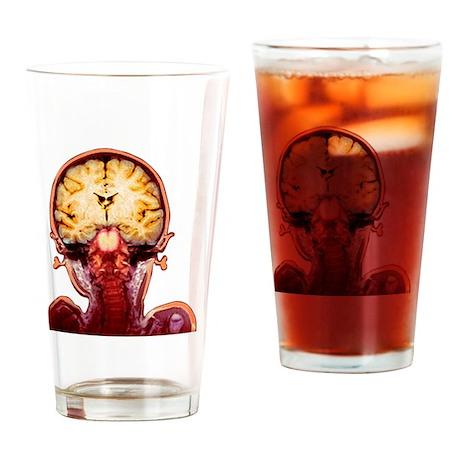 Child's brain, MRI scan - Drinking Glass