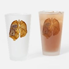 Emphysema of the lungs, CT scan - Drinking Glass