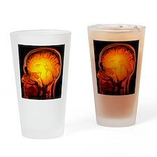 Brain anatomy, MRI scan - Drinking Glass