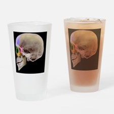 Paranasal sinuses, X-ray - Drinking Glass