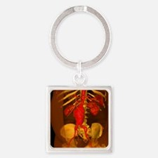Aortic aneurysm, 3-D CT scan - Square Keychain
