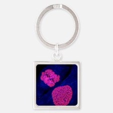 Breast cancer cells - Square Keychain