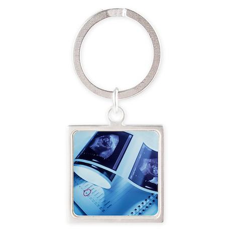 Foetus ultrasound - Square Keychain