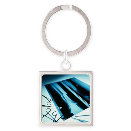 Leg fracture, X-ray - Square Keychain