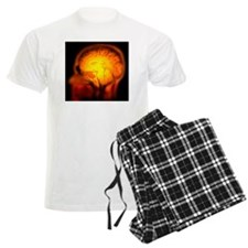 Brain anatomy, MRI scan - Pajamas