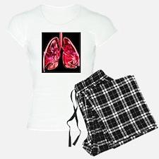 Lungs, artwork - Pajamas