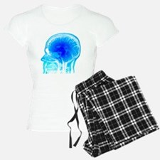 Brain anatomy, MRI scan - Pajamas