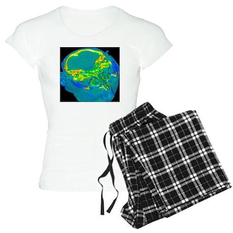 Brain scan, artwork - Women's Light Pajamas